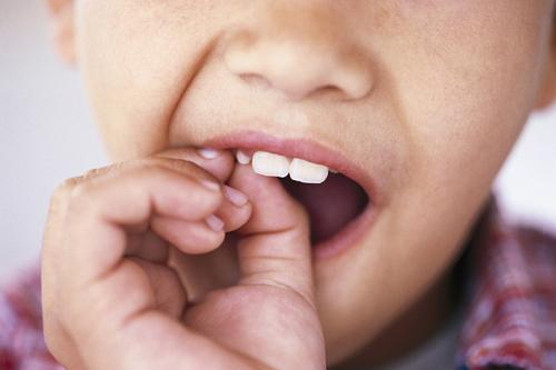 Mơ gãy răng