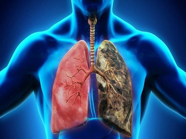 4 cách đơn giản phòng tránh ung thư phổi